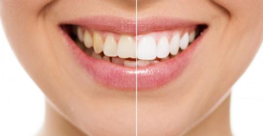 Kiturile de albire a dinților – pro și contra